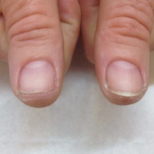 IBX nails after treatment