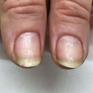 IBX nails before treatment
