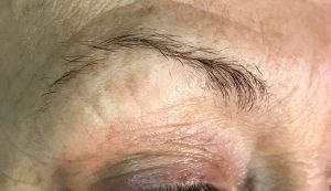 Before Everlasting Microblading Brows treatment